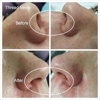 IPL Treatment on Thread Veins