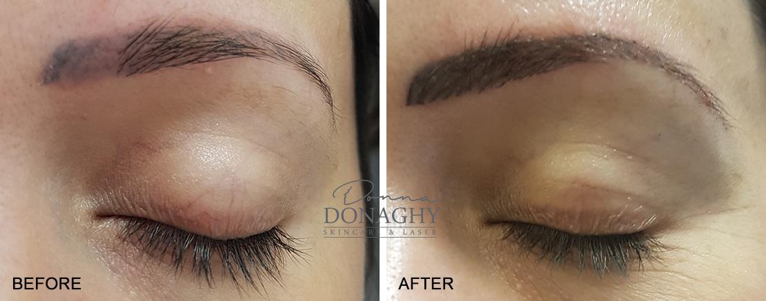 Semi Permanent Makeup / Micropigmentation