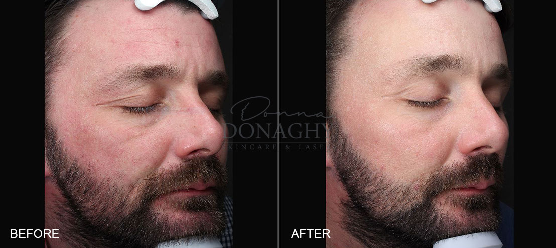 Photopeel Before and After